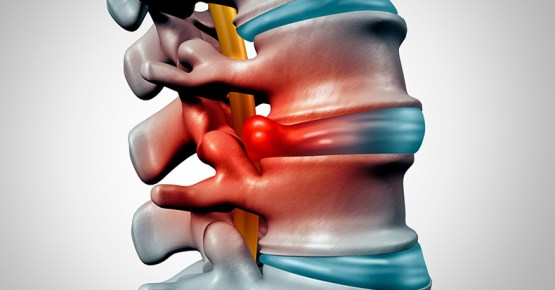 Treatment ofSpinal Disc Herniation, Treatment ofSpinal Disc Herniation, Exercise, Home Remedies,