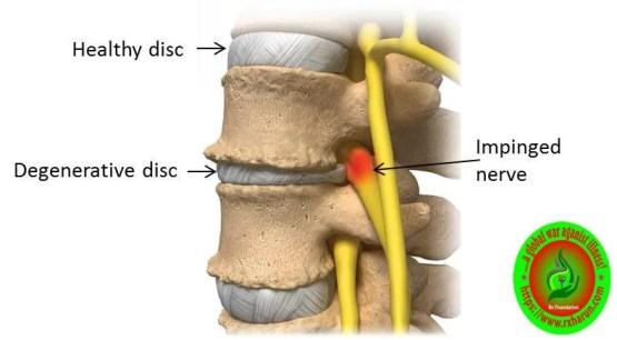 rxharun.com/low back pain