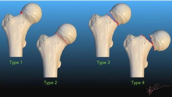 Intertrochanteric Femoral Neck Fractures