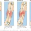 Ulnar Shaft Fractures