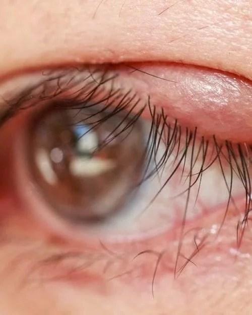 Blepharitis Causes Symptoms Diagnosis Treatment   Rx Harun