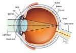 Farsightedness, Causes, Symptoms, Diagnosis, Treatment