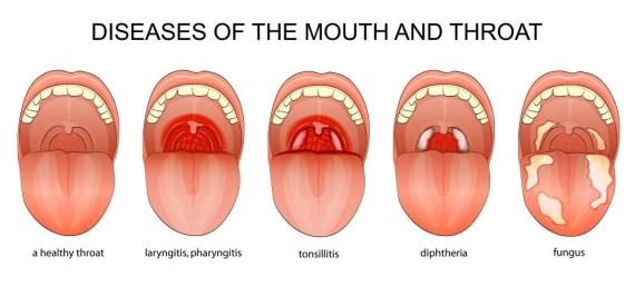Pharyngitis Diagnosis