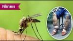 Filariasis Causes, Symptoms, Treatment