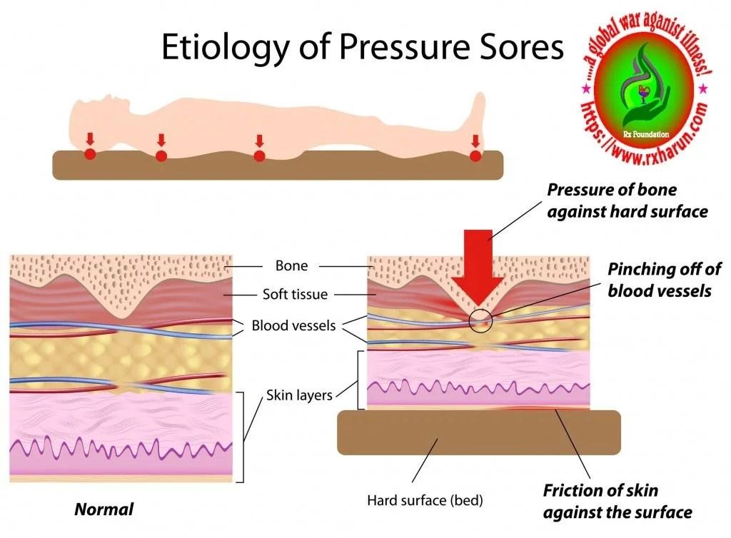 Causes Symptoms of Biceps Tendinopathy