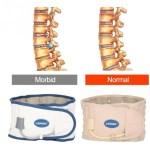 Lumbar Corset Back Brace; Uses, Indications, Size