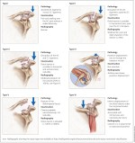 Movement of Shoulder Girdle – Ligament and Bursa