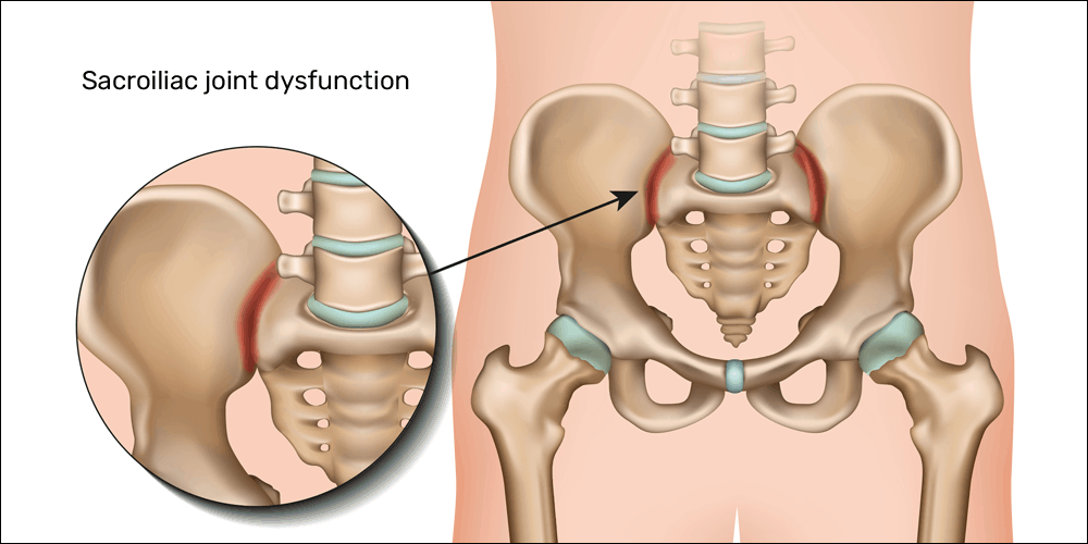 Sacroiliac Joint Dislocation, Sacroiliac Joint Dislocation – Causes, Symptoms, Treatment,