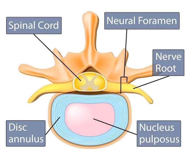 Lumbar Degenerative Spondylolisthesis