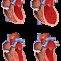 Inferior Wall Myocardial Infarction