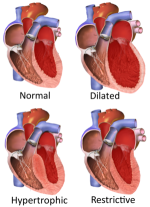 Inferior Wall Myocardial Infarction