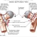 Posterior Hip Dislocation