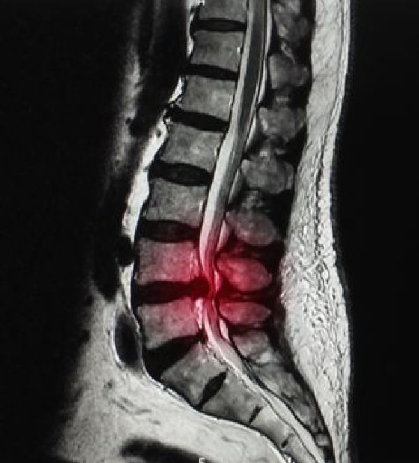 Typical findings of solitary nerve lesion due to compression by a herniated disc in the cervical spine C5 Nerve - neck, shoulder, and scapula pain, lateral arm numbness, and weakness during shoulder abduction, external rotation, elbow flexion, and forearm supination. The reflexes affected are the biceps and brachioradialis. C6 Nerve - neck, shoulder, scapula, and lateral arm, forearm, and hand pain, along with lateral forearm, thumb, and index finger numbness. Weakness during shoulder abduction, external rotation, elbow flexion, and forearm supination and pronation is common. The reflexes affected are the biceps and brachioradialis. C7 Nerve - neck, shoulder, middle finger pain are standard, along with the index, middle finger, and palm numbness. Weakness on the elbow and wrist are common, along with weakness during radial extension, forearm pronation, and wrist flexion may occur. The reflex affected is the triceps. C8 Nerve - neck, shoulder, and medial forearm pain, with numbness on the medial forearm and medial hand. Weakness is common during finger extension, wrist (ulnar) extension, distal finger flexion, extension, abduction, and adduction, along with distal thumb flexion. No reflexes are affected. T1 Nerve - pain is common in the neck, medial arm, and forearm, whereas numbness is common on the anterior arm and medial forearm. Weakness can occur during thumb abduction, distal thumb flexion, and finger abduction, and adduction. No reflexes are affected.