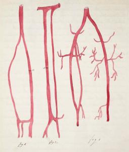 John Hatton blood vessels