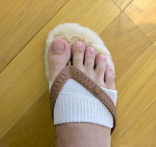 サンダルの靴擦れ対処法親指