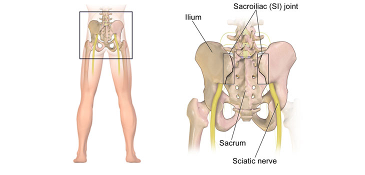 sacroiliac joint diagram prs hfs pickup wiring three new studies ct scans uncover widespread si degeneration distressed patients mean dissatisfaction with surgeon and more