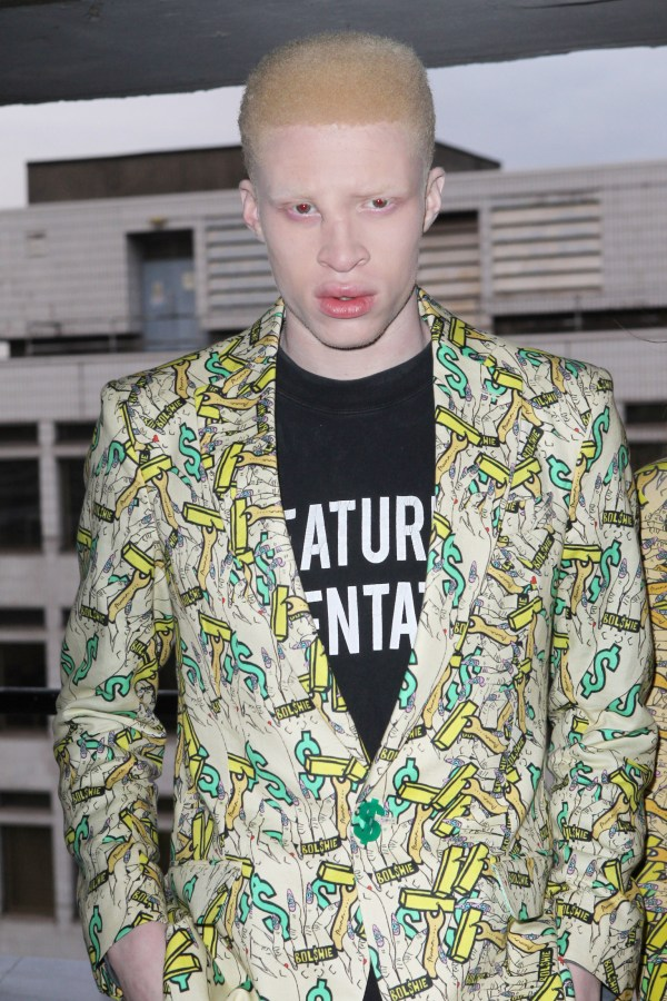 albino model shaun