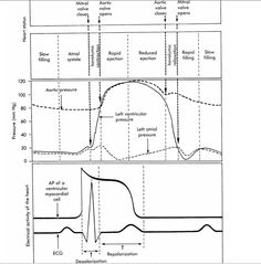1000+ images about Haemodynamic Monitoring on Pinterest