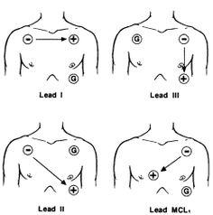 Ecg Electrode Placement Diagram ECG Leads Diagram wiring