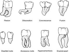 Primary and Permanent Tooth Chart by letters (primary) and