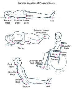 1000+ images about RN...Procedures...Wounds on Pinterest