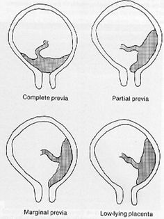 The Stages of Labor Chart: First and second, transitional