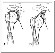 Managing Expectations When Recovering From Labral Repair