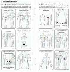 A visual guide to the Compex Electrode Pad Placement Chart
