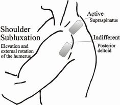 Scapula, Diff'rent strokes and Extensions on Pinterest
