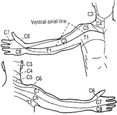 Locating and Alleviating Pain with the Dermatome Chart & E