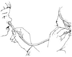 1000+ images about Oral Motor/ Myofunctional Therapy on