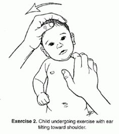 COngenital Muscular Torticollis. Like the top L carry