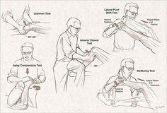 supraspinatus referral pattern Shoulder Impingement Part 6