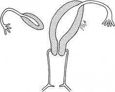 Bicornuate Uterus: sometimes referred to as a biquadrant