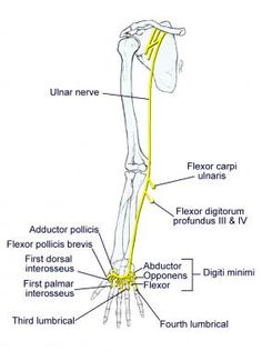 Struthers' ligament: median nerve is vulnerable to