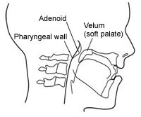 1000+ images about Resonance/ Cleft Palate Speech on