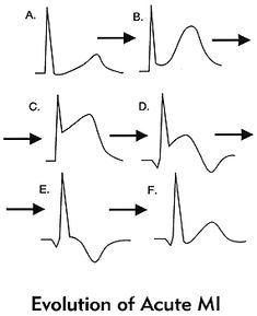 Stemi vs NStemi ECG along with further explanation of