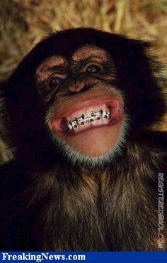 Braces Fun on Pinterest  Orthodontics Braces and Monkey