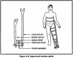 How to make a sling or splint #Senior Girl Scout First Aid