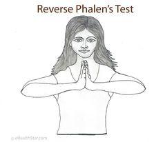Phalen's Test (Sign): Procedure, Pictures on Pinterest