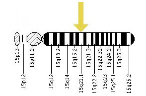 Marfans Syndrome- A genetic disorder caused by a mutation
