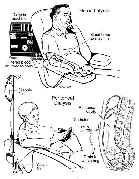 http://renalcalculi.net/hemodialysis.html Hemodialysis