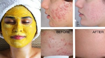 Learn how Indian Women handle acne and its scars: