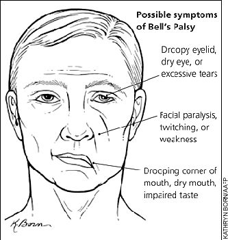 Bell's Palsy. Place an eye shield over affected eye at