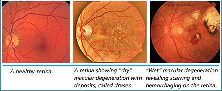 Wet vs Dry Macular Degeneration | Macular Degeneration ...