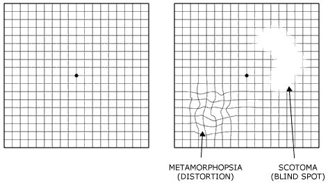 Amsler grid: This test, using a grid that resembles graph