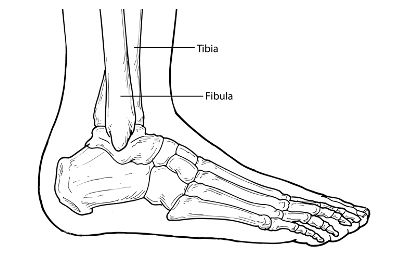 Ankle fracture, Ranges and What is on Pinterest