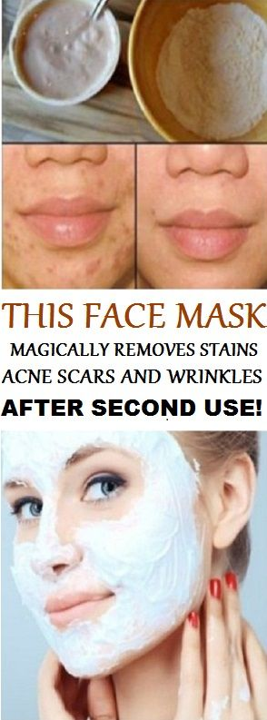 THIS FACE MASK MAGICALLY REMOVES STAINS , ACNE SCARS AND WRINKLES AFTER SECOND USE: