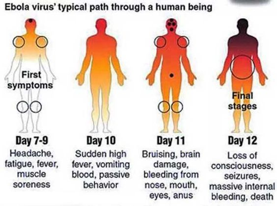 Image result for ebola virus symptoms and treatment