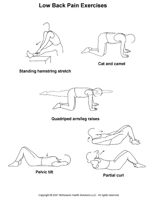 Back pain, Exercise and Back pain exercises on Pinterest
